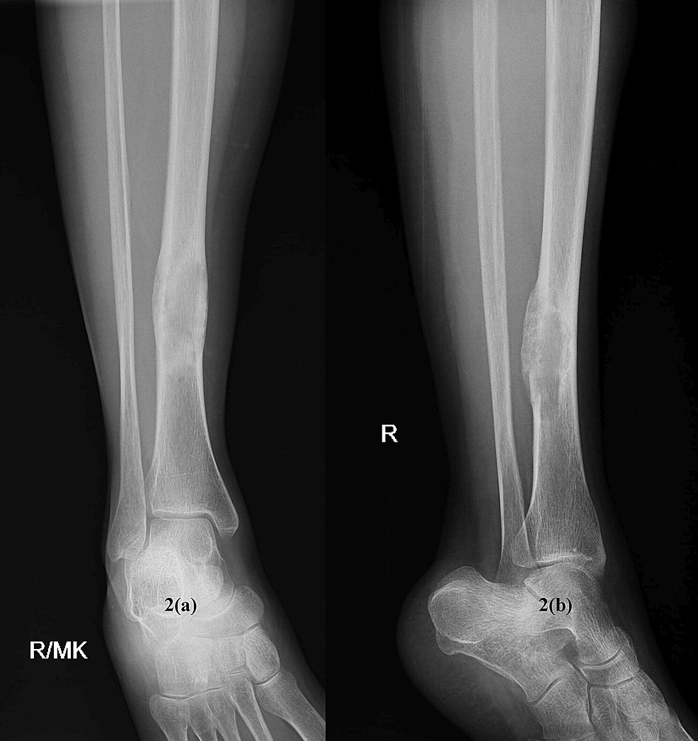 2(a)-anteroposterior-and-2(b)-lateral-view-of-healed-lesion-of-right-tibial-diaphysis-after-treatment-with-vitamin-D-supplements.
