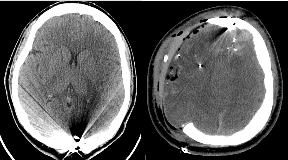 Post-operative-computed-tomography-(CT)-head-revealed-residual-subdural-hematoma,-intraparenchymal-hematoma,-pneumocephalus,-right-greater-than-left-edema,-craniectomy-defect-herniation,-and-a-small-subgaleal-hematoma.