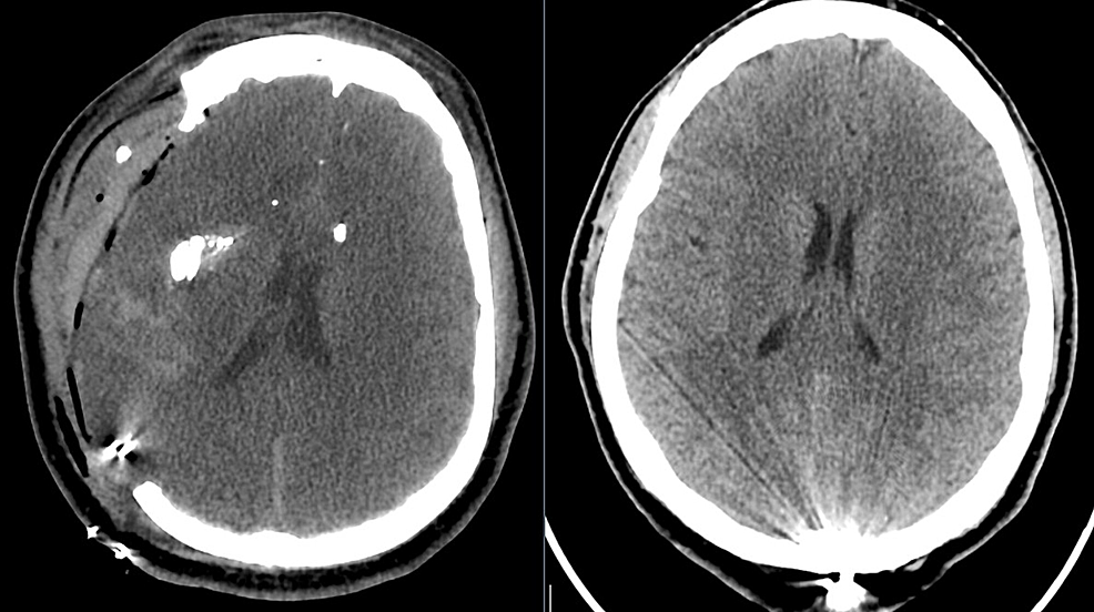 Computed-tomography-(CT)-head-revealing-improved-subfalcine-herniation.