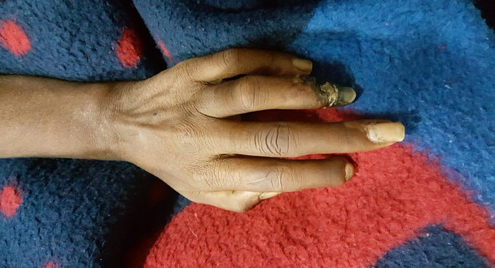 Sclerodactyly-and-ulceration-of-fourth-finger