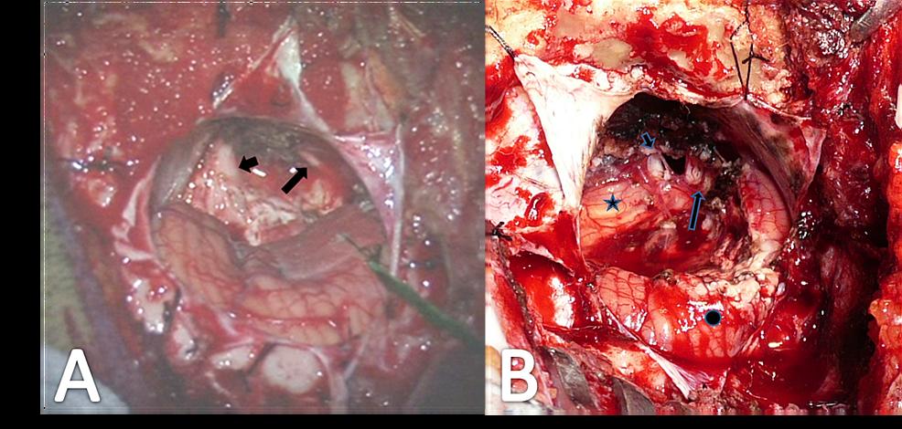 Intraoperative-Exposure-of-Cranial-Nerves