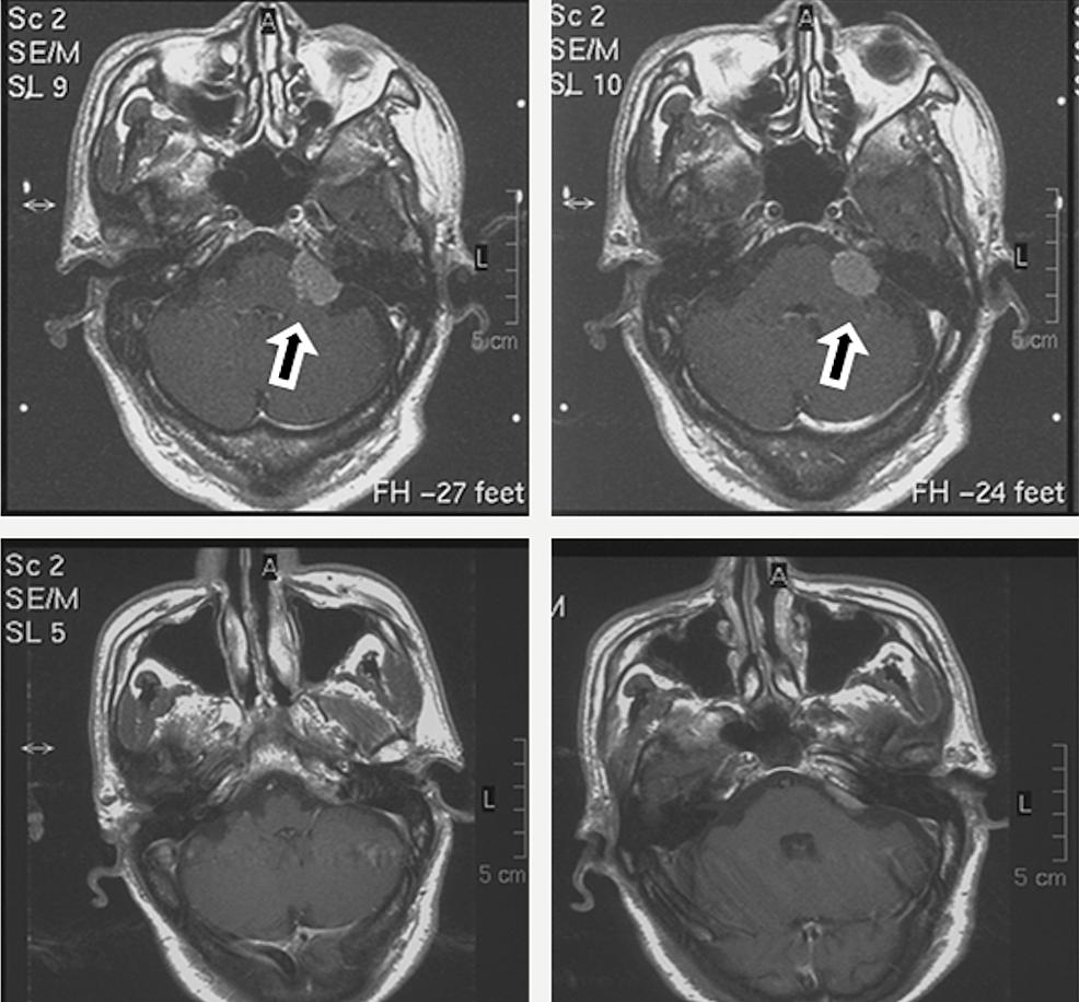 Application-of-Radiosurgery-to-Residual-Tumor
