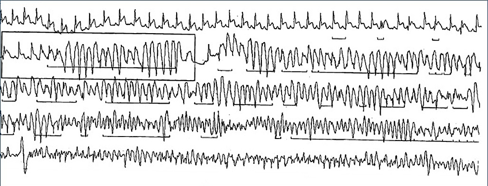 Fragment-from-24-hour-Holter-monitor-showing-ST-elevation-followed-by-polymorphic-ventricular-tachycardia.