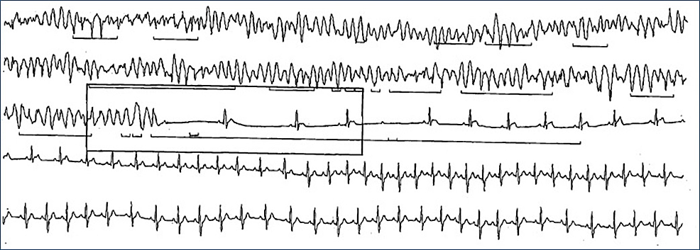 Fragment-from-24-hour-Holter-monitor-showing-polymorphic-ventricular-tachycardia-and-Mobitz-Type-II-atrioventricular-block-followed-by-sinus-tachycardia.