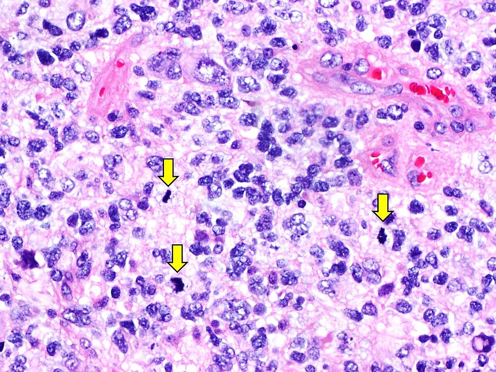 Histopathological-examination-of-resected-tumour