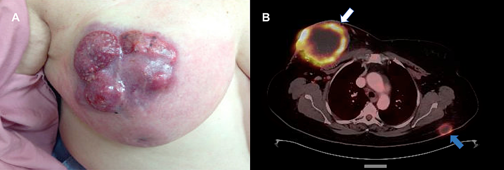 Initial-Presentation-of-the-Breast-Mass