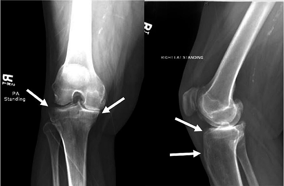 Roentgenogram-of-right-knee.-Note-the-bone-expansion-and-marked-sclerosis.
