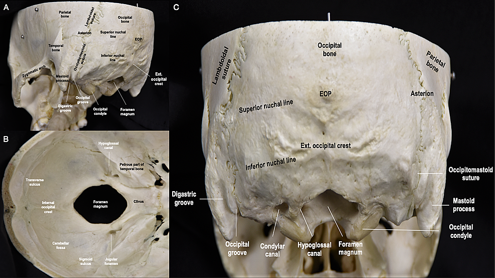 Overview-of-the-occipital-bone-anatomy.-(A)-Posterolateral-perspective-of-the-skull-illustrating-the-conical-protuberance-of-the-temporal-bone,-known-as-the-mastoid-process,-and-zygomatic-arch;-(B)-Inferior-perspective-of-the-skull­-showing-various-grooves,-canals,-and-corridors;-(C)-Posterior-perspective-of-the-skull-revealing-the-reniform-occipital-condyles-and-their-oblique-orientation