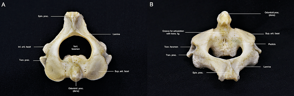 Overview-of-the-axis.-(A)-Superior-perspective-of-the-axis-revealing-the-bifid-and-large-spinous-process-as-well-as-the-unique-shape-of-the-vertebral-foramen;-(B)-Posterior-perspective-of-the-axis-revealing-the-upward-protuberance-of-the-odontoid-process-and-concavity-of-the-superior-articular-facets