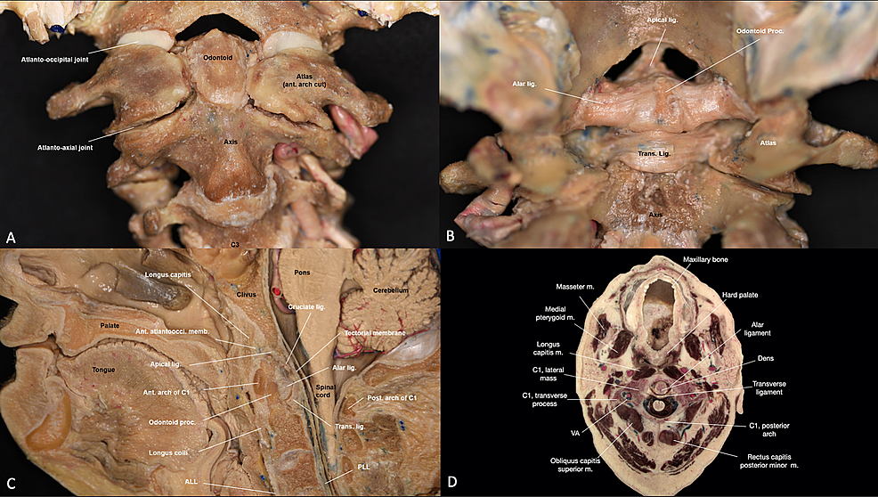 Overview-of-the-main-joints-and-ligaments-of-the-craniocervical-junction-(CCJ)-region.-(A)-Anterior-view-of-the-CCJ,-after-drilling-the-anterior-arch-of-the-atlas-to-show-the-dens-(B)-Posterior-view-of-the-CCJ-joint-and-ligaments-(C)-Sagittal-view-of-the-CCJ-(D)-Axial-view-of-the-atlantoaxial-joint.