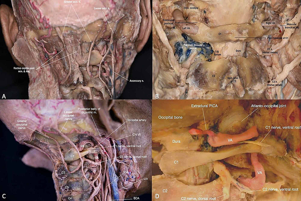 Overview-of-neurovascular-anatomy-of-the-craniocervical-junction-(CCJ)-(A)-Posterior-view-of-the-CCJ-with-attention-to-neural-anatomy-in-the-context-of-deep-back-muscles-and-cervical-vertebrae-(B)-Close-up-of-the-posterior-view-of-the-neurovascular-structures-of-the-CCJ-(C)-Lateral-view-of-the-CCJ-with-attention-to-major-arteries,-nerves,-and-veins-(D)-Close-up-of-the-lateral-view-of-the-neurovascular-structures-of-the-CCJ.--