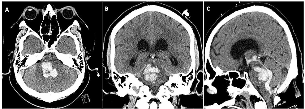 CT-head-without-contrast-revealed-extensive-pontine-and-midbrain-hemorrhage-with-intraventricular-extension-involving-the-third-and-fourth-ventricles-and-early-hydrocephalus