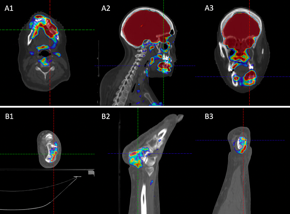 Representative-images-of-positron-emission-tomography-(PET)/CT-at-relapse,-which-shows-the-(A)-mandibular-and-(B)-right-ankle-18-F-fluorodeoxyglucose-(FDG)-avidity-using-an-(1)-axial-view,-(2)-sagittal-view,-and-(3)-coronal-view.