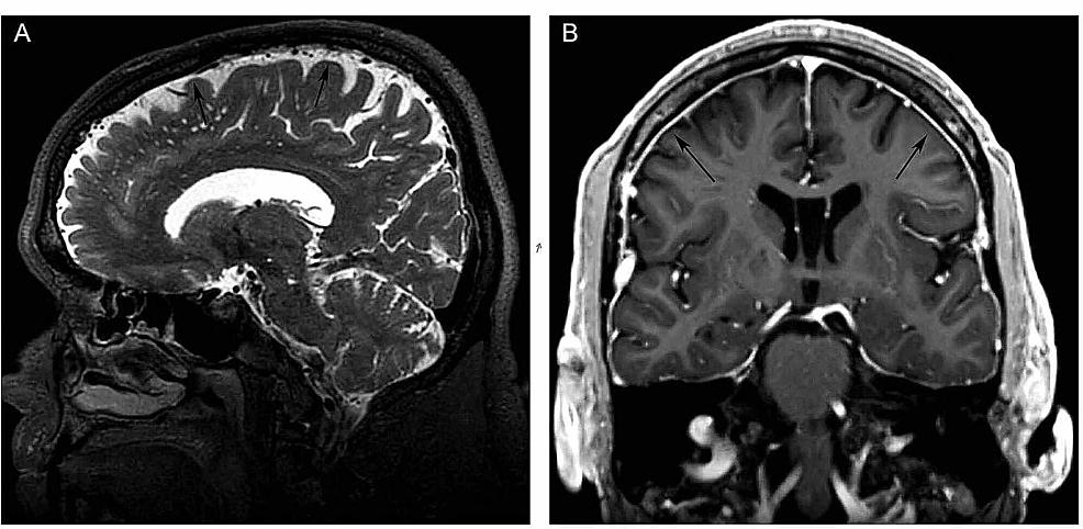 Preoperative-MRI.