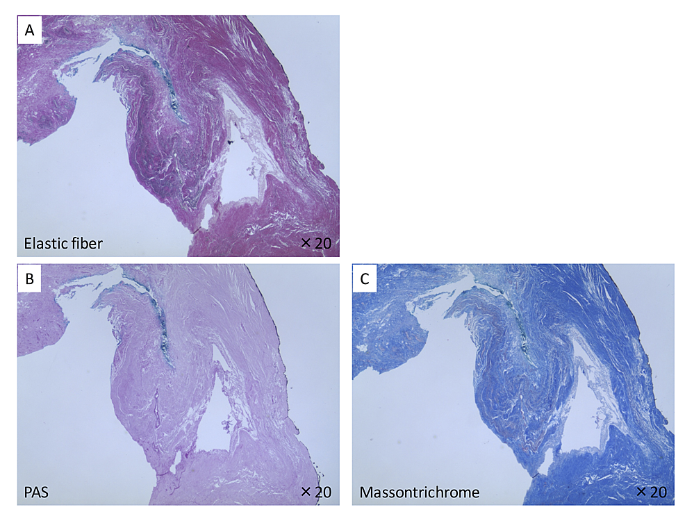Histological-analysis-of-the-soft-tissue-filling-the-fossa-navicularis.
