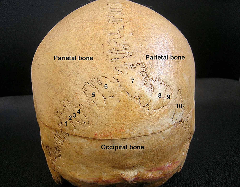 The-posterior-view-of-the-skull-showing-10-sutural-bones-(Wormian-bones).-