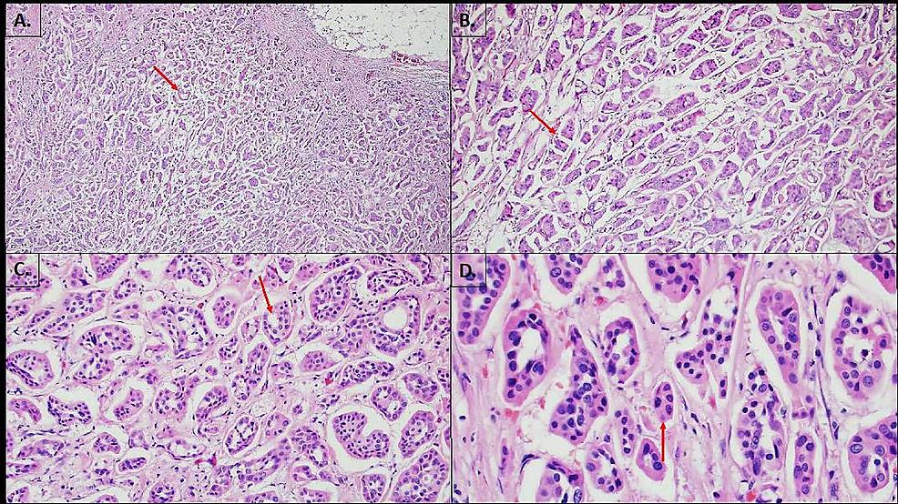 Needle-core-biopsy-of-left-breast-mass