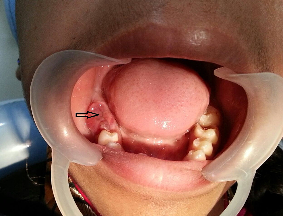 Mild-erythematous-swelling-with-the-indentation-marks-of-the-opposing-maxillary-teeth-is-seen-on-the-right-posterior-alveolar-ridge-of-mandible-(Arrow).