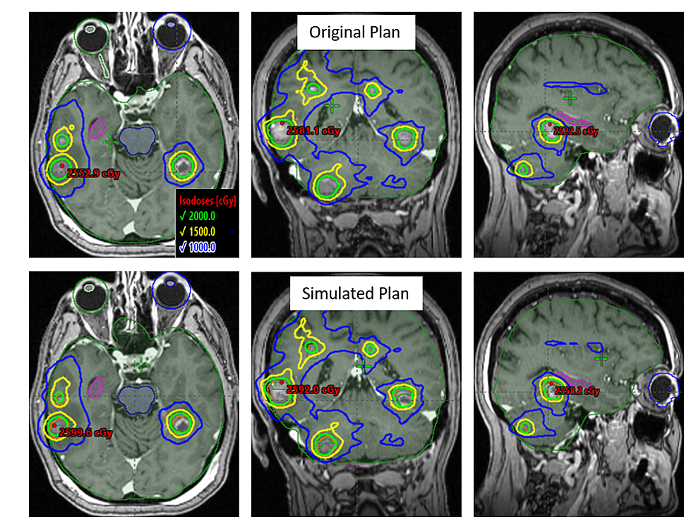 An-axial,-coronal-and-sagittal-view-of-an-example-case-with-16-tumors