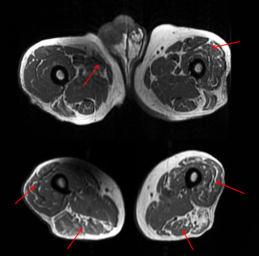 Axial-T1-fast-spin-echo-(FSE)-of-the-upper-and-lower-bilateral-thighs-with-mild-edema-diffusely-in-the-anterior-muscles-of-the-proximal-left-and-right-thigh-(top)-with-increased-hyperintensity-in-the-mid-to-distal-thigh-muscles-bilaterally-suggestive-of-muscular-edema-(bottom).-
