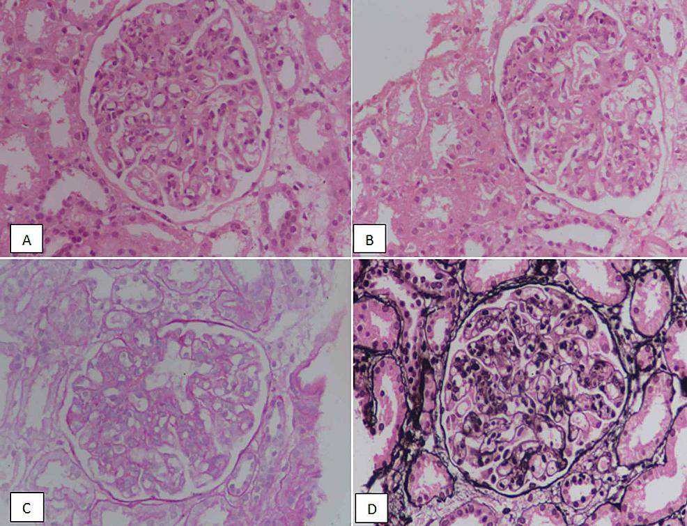 Cureus Spectrum Of Morphologic Features Of Lupus Nephritis According To Nephrology Renal Pathology Society Isn Rps Classification