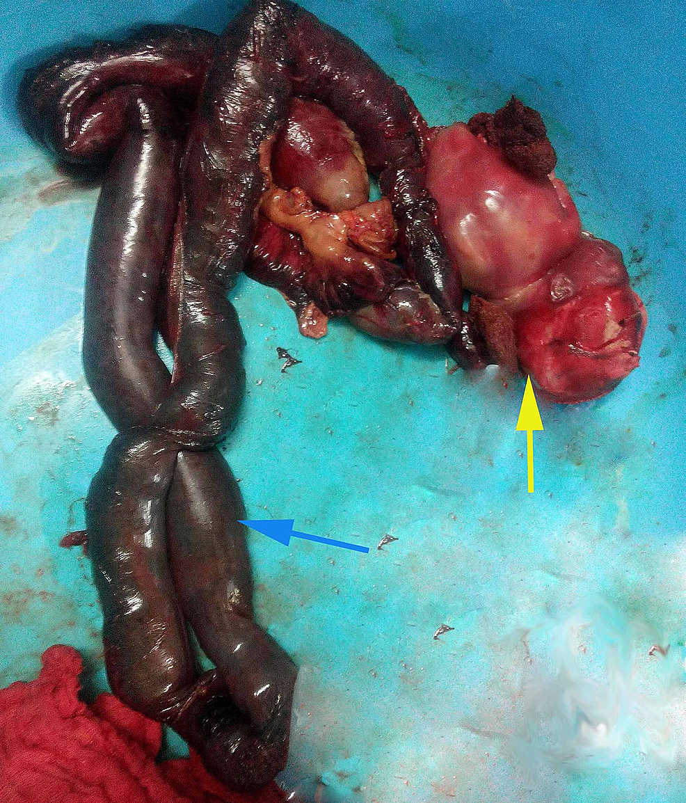 Resected-bowel-segment-with-the-foetus