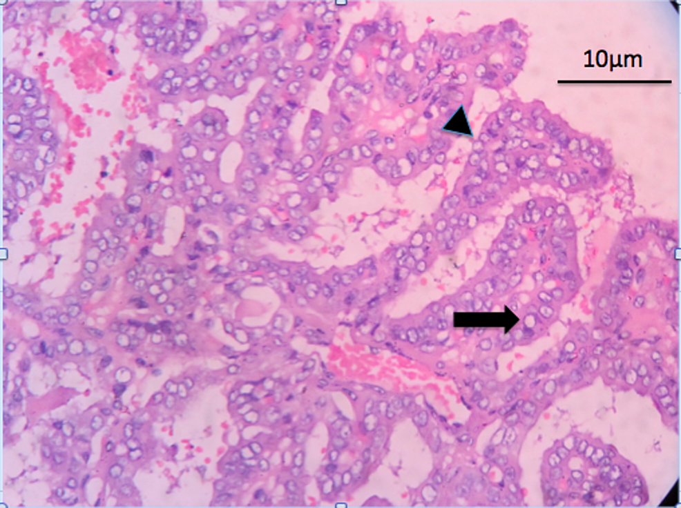 Hematoxylin-and-eosin-(H&E)-staining-showing-complex-papillary-architecture-(arrowhead)-with-a-fibrovascular-core.-The-tumor-cells-have-nuclear-clearing---Orphan-Annie-eye-nuclei-(arrow).