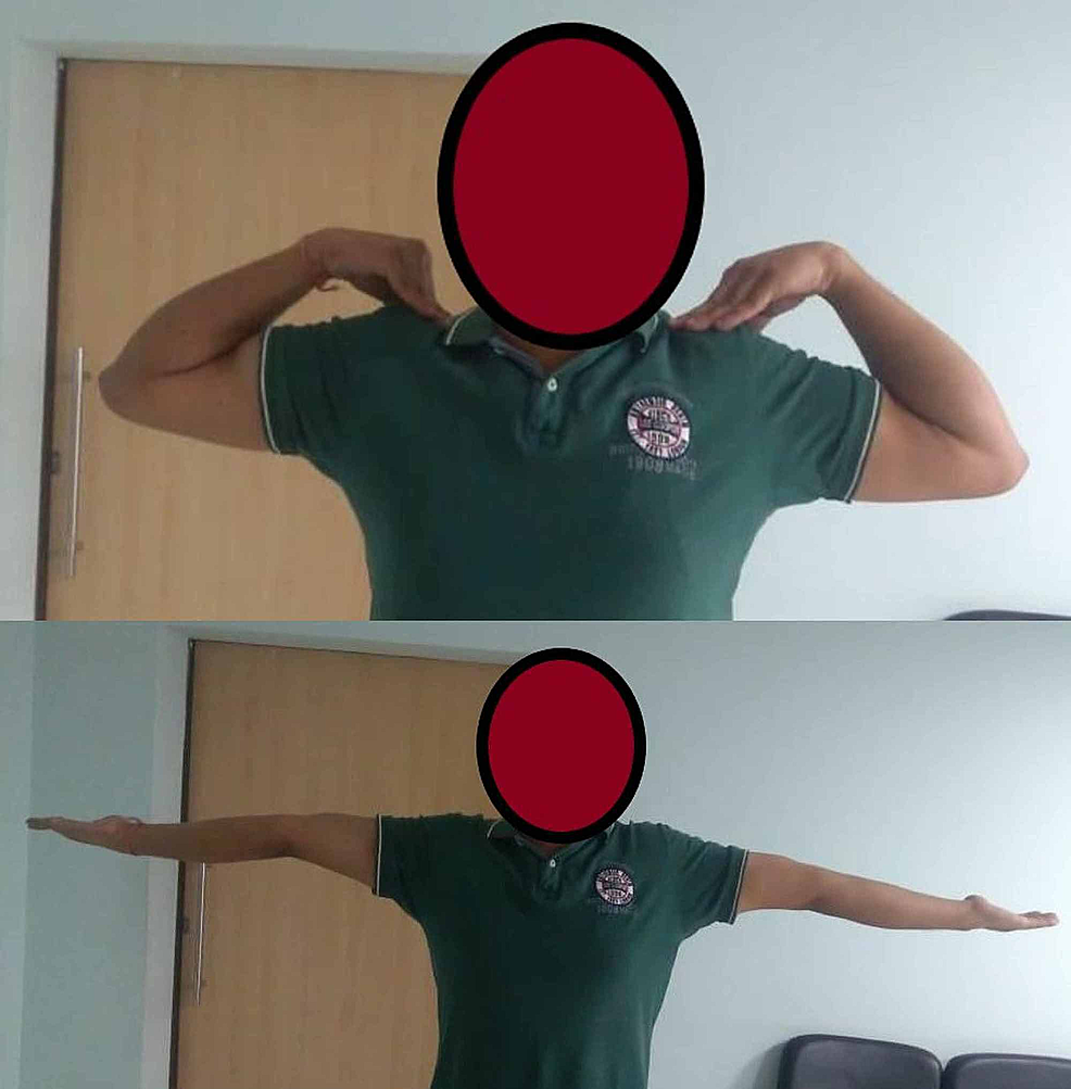 Case-5---clinical-photo-at-the-final-follow-up-showing-complete-flexion-and-extension-of-the-left-elbow,-comparable-to-the-opposite-side
