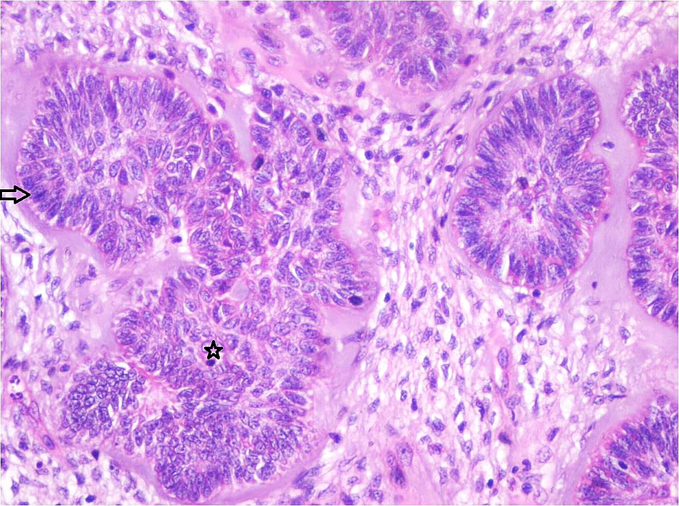 Photomicrograph-showing-follicles-of-odontogenic-epithelium-lined-by-tall-columnar-cells-with-hyperchromatic-nuclei-resembling-ameloblasts-(Arrow)-and-central-stellate-reticulum-like-cells-(Star)-in-a-cell-rich-ectomesenchyme.-Each-follicle-is-surrounded-by-pale-eosinophilic-hyalinized-area-resembling-dysplastic-dentin-like-material-(Haematoxylin-&-Eosin-stain,-x200).