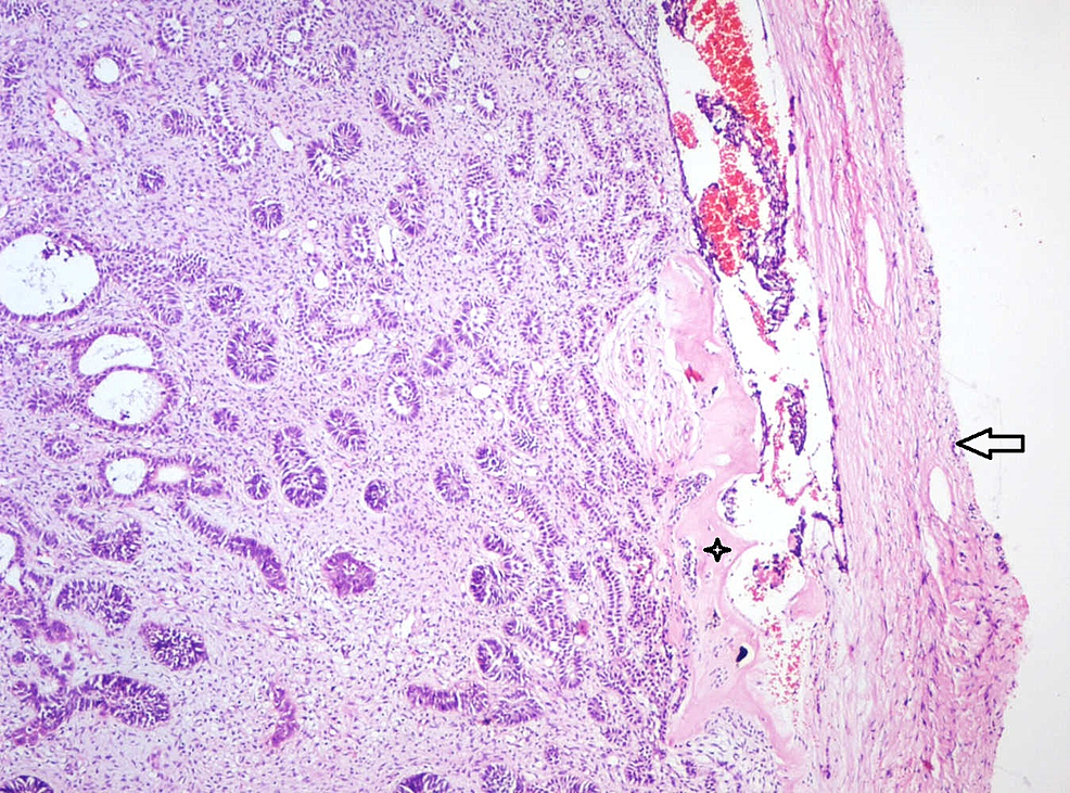 Photomicrograph-of-excised-specimen-showing-multiple-strands-and-follicles-of-odontogenic-epithelium-in-a-cell-rich-ectomesenchyme-surrounded-by-a-fibrous-capsule-(Arrow).-Close-to-the-capsule,-eosinophilic-areas-resembling-dysplastic-dentin-(Star)-is-evident-(Haematoxylin-&-Eosin-stain,-x40).