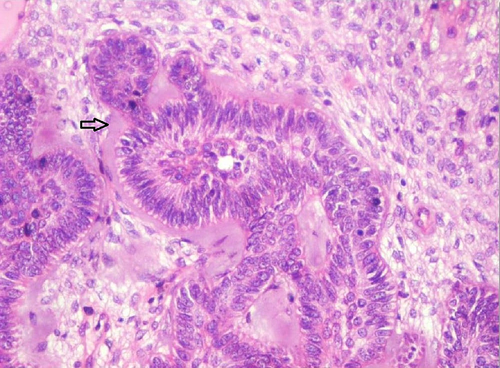 Photomicrograph-showing-follicles-of-odontogenic-epithelium-surrounded-by-pale-eosinophilic-hyalinized-area-resembling-dysplastic-dentin-(Arrow)-in-cell-rich-ectomesenchyme-(Haematoxylin-&-Eosin-stain,-x100).