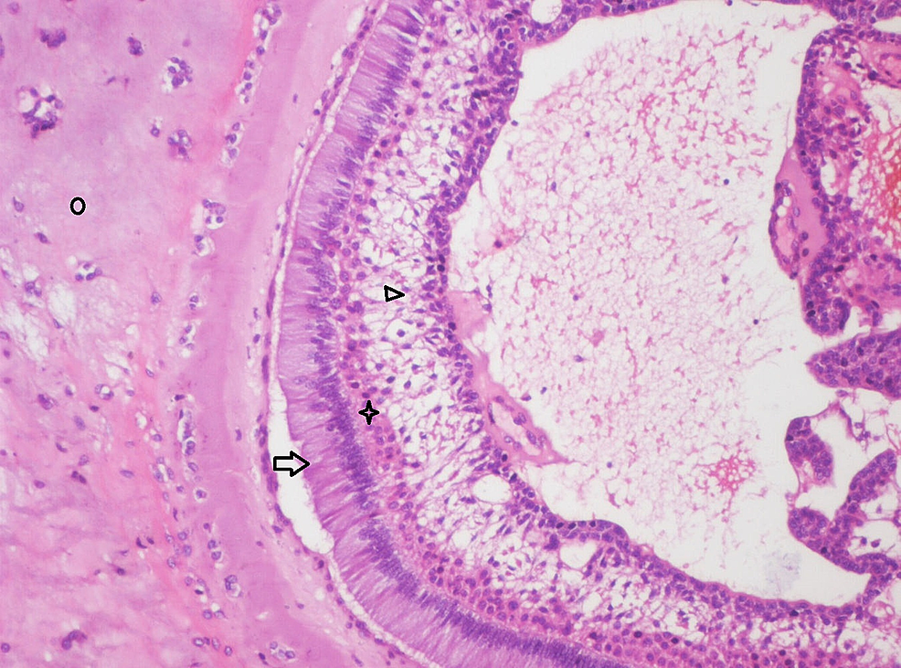 Photomicrograph-showing-follicle-of-odontogenic-epithelium-resembling-early-bell-stage-of-tooth-development-consisting-of-tall-columnar-cells-(Arrow),-adjacent-flattened-layer-of-cells-resembling-stratum-intermedium-(Star)-and-stellate-reticulum-like-cells-(Arrow-head).-Central-cystic-degeneration-and-the-enamel-organ-surrounded-by-pale-eosinophilic-hyalinized-(Circle)-area-with-entrapped-epithelial-cells-resembling-osteodentin-is-evident-(Haematoxylin-&-Eosin-stain,-x200).
