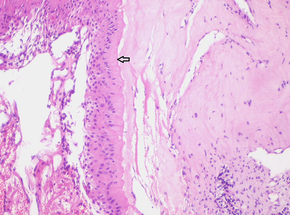 Photomicrograph-showing-pale-eosinophilic-hyalinized-area-adjacent-to-columnar-ameloblast-like-(Arrow)-cells-(Haematoxylin-&-Eosin-stain,-x100).