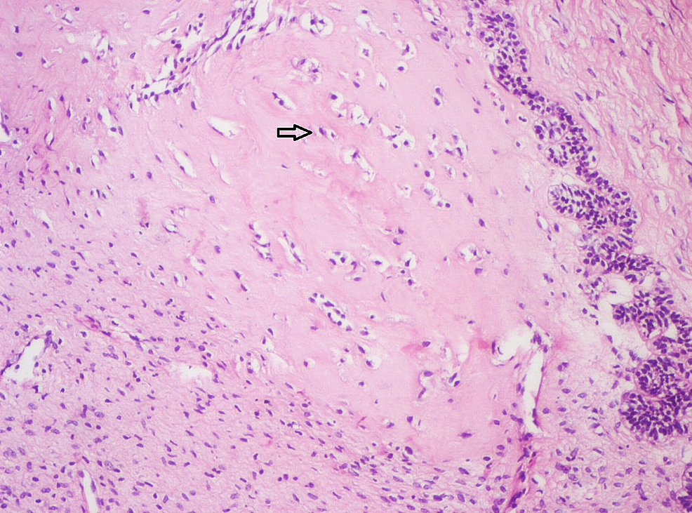 Photomicrograph-showing-pale-eosinophilic-hyalinized-area-with-entrapped-epithelial-cells-(Arrow)-resembling-osteodentin-(Haematoxylin-&-Eosin-stain,-x100).