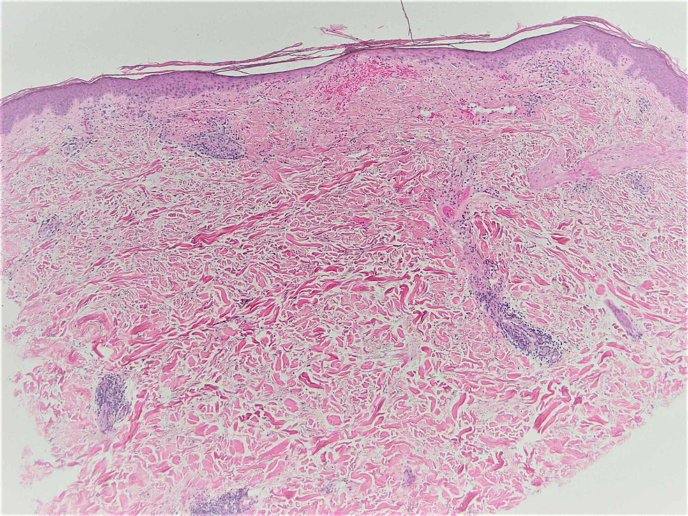 Punch-biopsy-of-the-resolving-lesion-(H&E-×40).