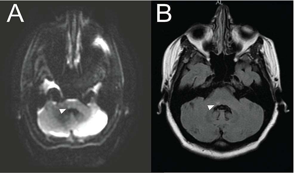 Brain-MRI-