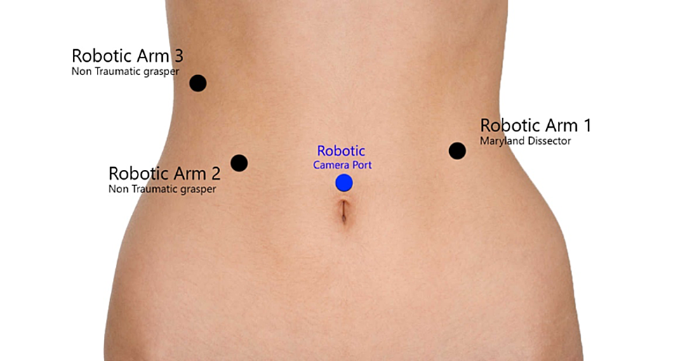 An-illustration-for-the-port-placement-of-robotic-surgery.