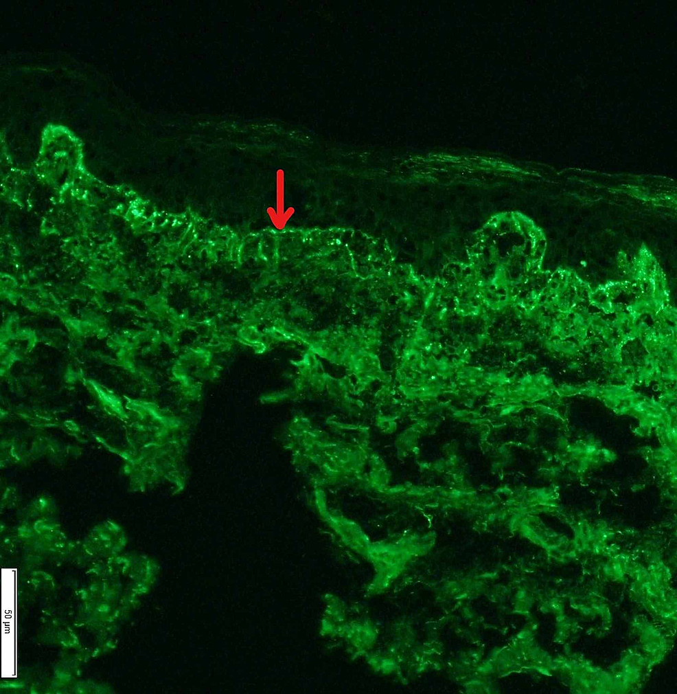 DIF-(×200,-IgM).-The-red-arrow-shows-the-strong-granular-staining-with-IgM-along-the-dermal-epidermal-junction.