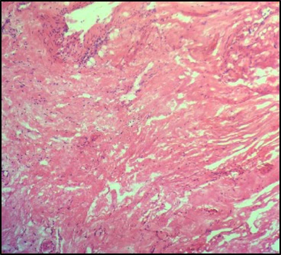 Histopathology-section