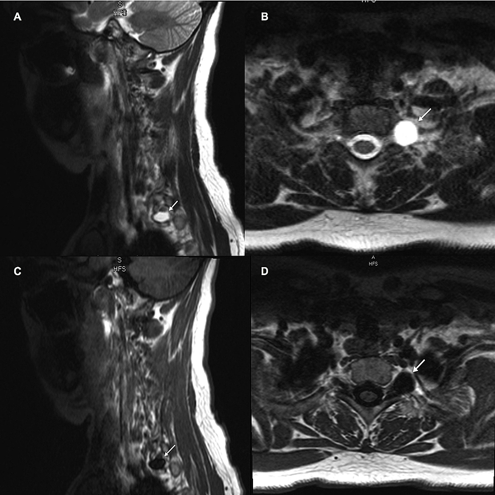 MRI-of-cervical-spine-without-contrast