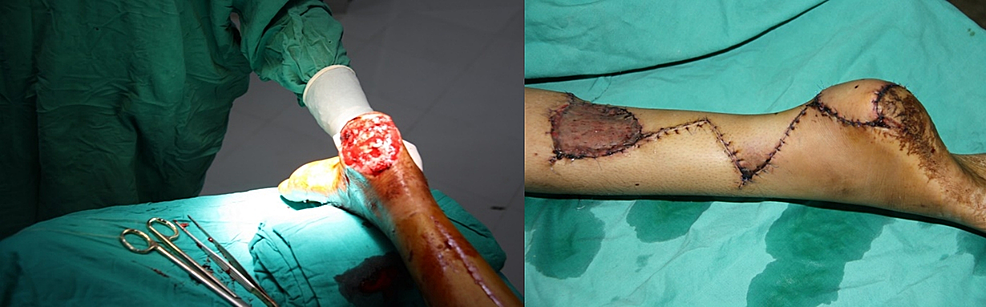 Pre-operative-(left)-and-post-operative-(right)-picture-of-the-left-foot-of-a-15-year-old-girl,-which-was-repaired-with-reverse-sural-artery-flap.
