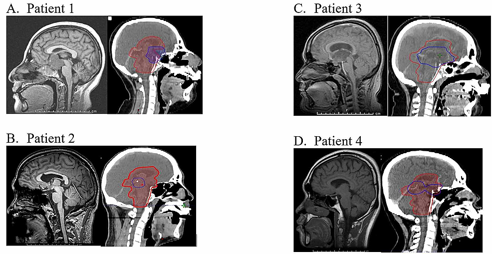 Tumor-locations-for-four-patients