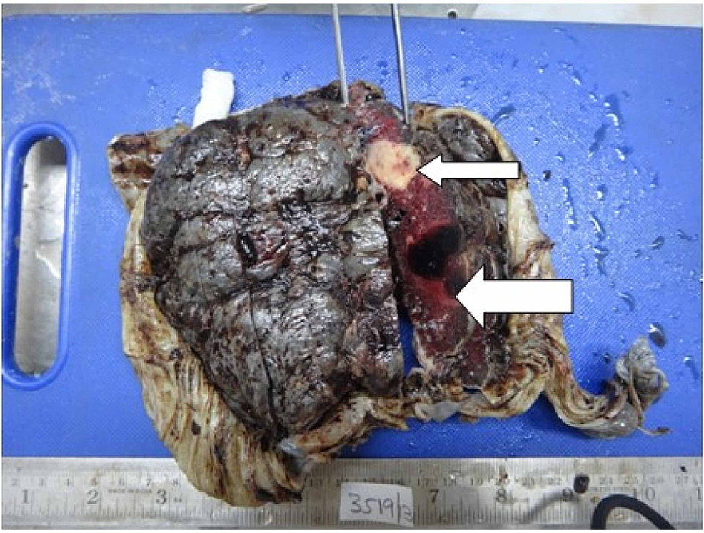 Examination-of-placenta-specimen-–-image-1