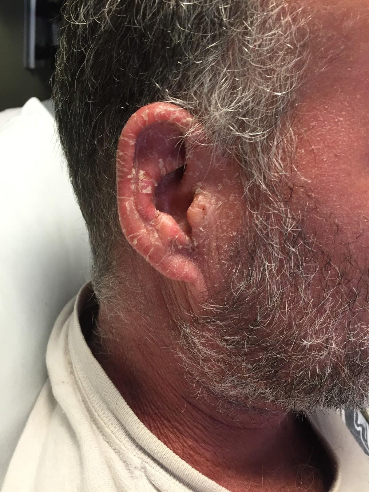Cureus | Erythroderma: A Rare Complication of Dyshidrotic Eczema