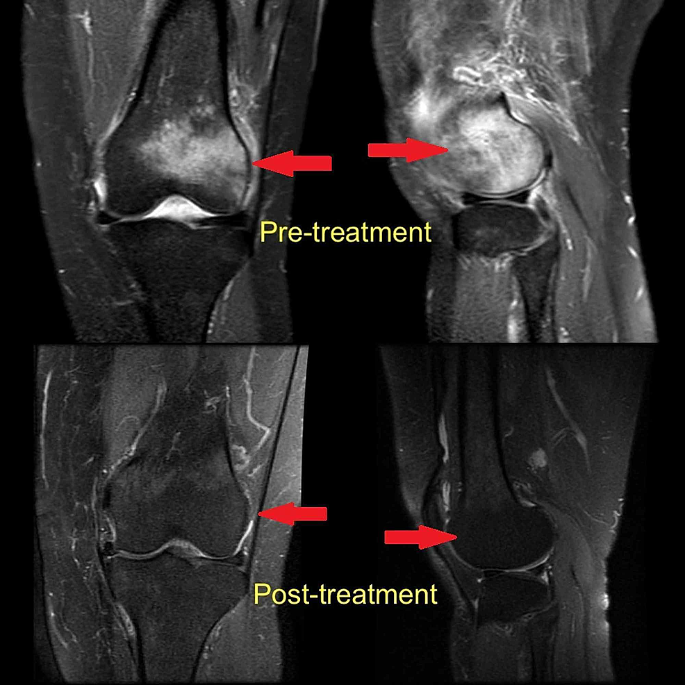 MRI-appearance-of-bone-marrow-edema-of-the-lateral-femoral-condyle-(arrows)