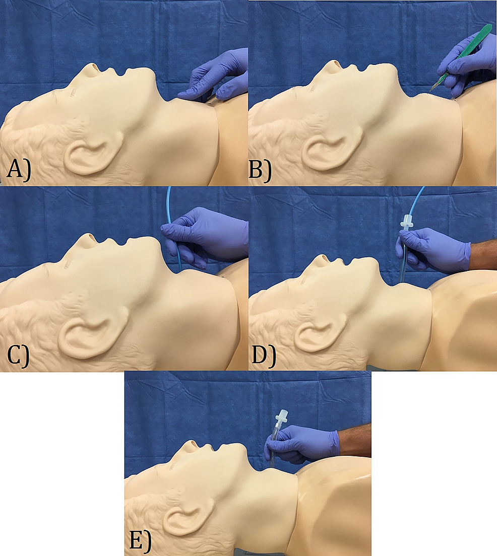 Surgical-cricothyroidotomy-five-step-technique:-a)-palpate-the-cricothyroid-gap;-b)-create-small-1.5-cm-incision;-c)-insert-bougie-to-confirm-tracheal-intubation;-d)-insert-intubation-tube;-e)-allow-for-oxygenation
