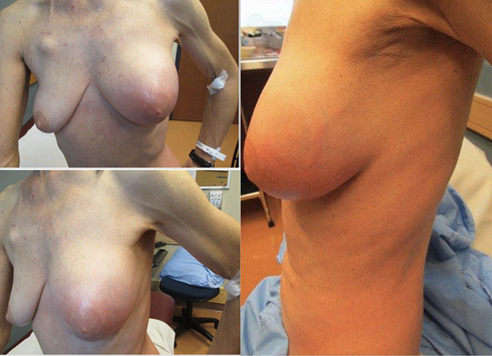 Clinical-photographs-showing-diffuse-erythema-and-swelling-involving-the-breast-and-surrounding-skin-and-soft-tissues-after-one-cycle-of-docetaxel-and-trastuzumab