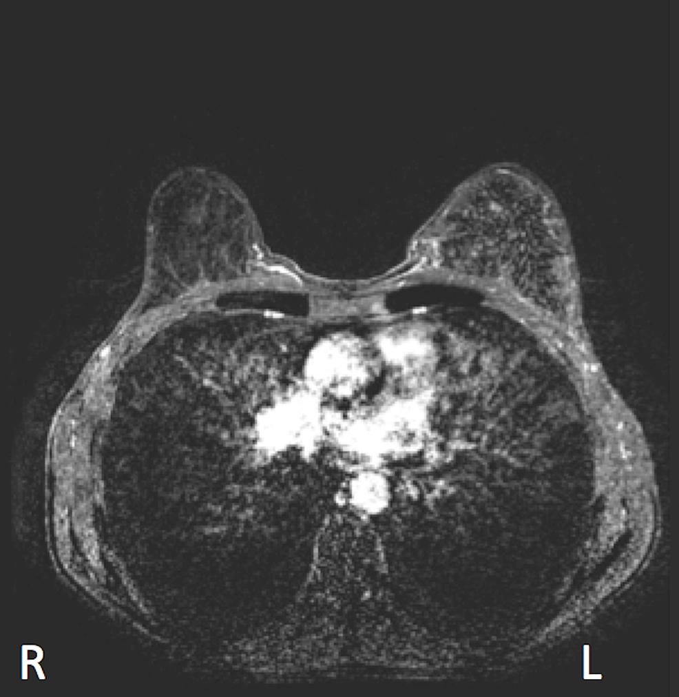 Magnetic-resonance-imaging-showing-partial-response-after-three-cycles-of-adriamycin/cyclophosphamide-chemotherapy