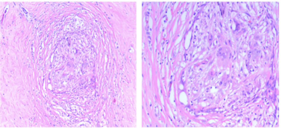 Pathology-slides-of-mastectomy-specimen-showing-stromal-fibrosis-with-no-evidence-of-residual-malignancy-(Left:-low-power-4X-and-Right:-high-power-20X-magnification)