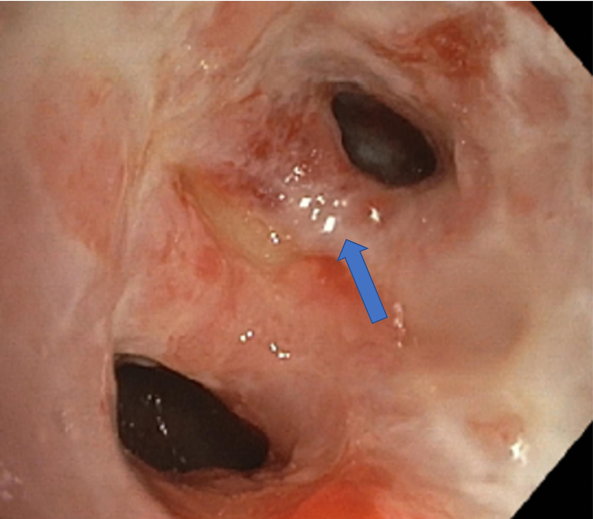 Cureus   Laryngeal Tuberculosis in Pregnant Women: A Case